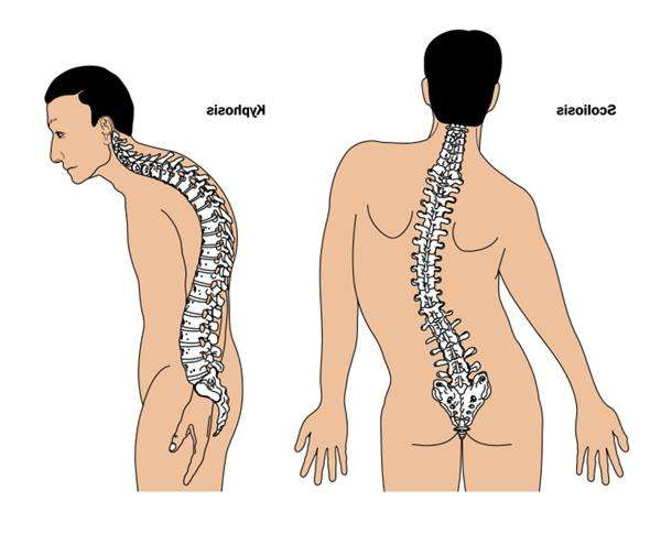 Синдром Марфана: симптомы и методы лечения